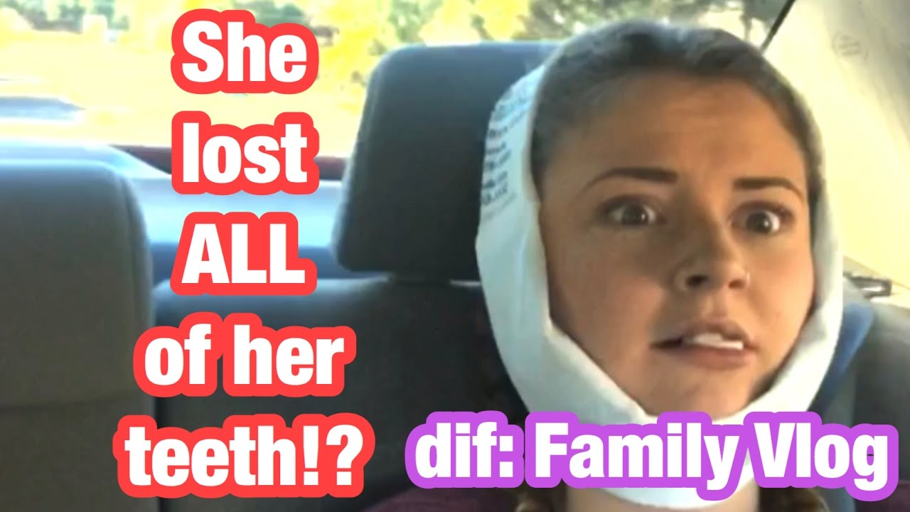 wisdom teeth aftermath youtube