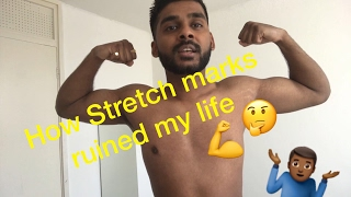 How stretch marks ruined my life