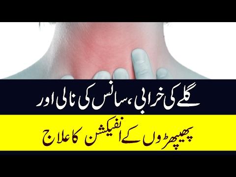 Gale Ki Kharabi, Saans Ki Naali Or Phephroun K Infection Ka Ilaj