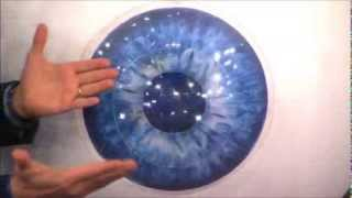LASIK Flap Never Heals - Dr. Oz and Google Glass WARNING