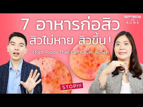 7 อาหารที่ทานแล้วเกิดสิว อาหารก่อสิว สิวเห่อ สิวไม่หาย | Foods That Can Cause Acne