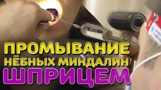 Промывание нёбных миндалин шприцем | Лечим правильно с Владимиром Зайцевым