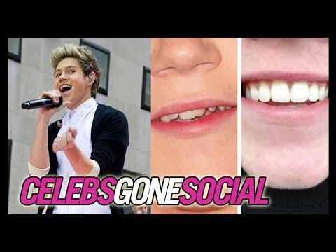 Niall Horan Got His Braces Off -- Celebs...