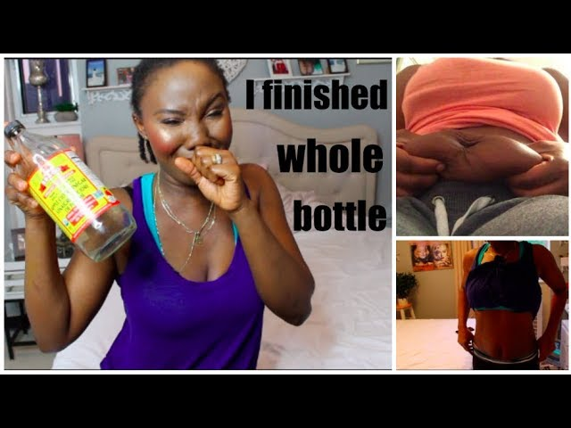 Unbelievable I Lost 19 Lbs With Apple Cider Vinegar Belly Shown In The Video