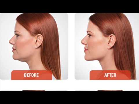 Kybella Can Help You See Your Chin Again!