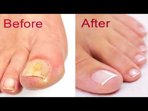 how-to-prepare-the-apple-cider-vinegar-and-baking-soda-remedy-at-home-to-treat-fight-nail-fungus