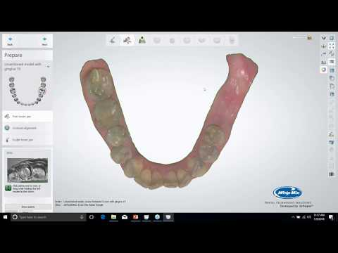 [Webinar] Digitally Designing the Screw Retained Prosthesis