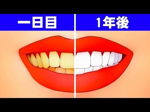 もしも1年間歯を磨かなかったら?