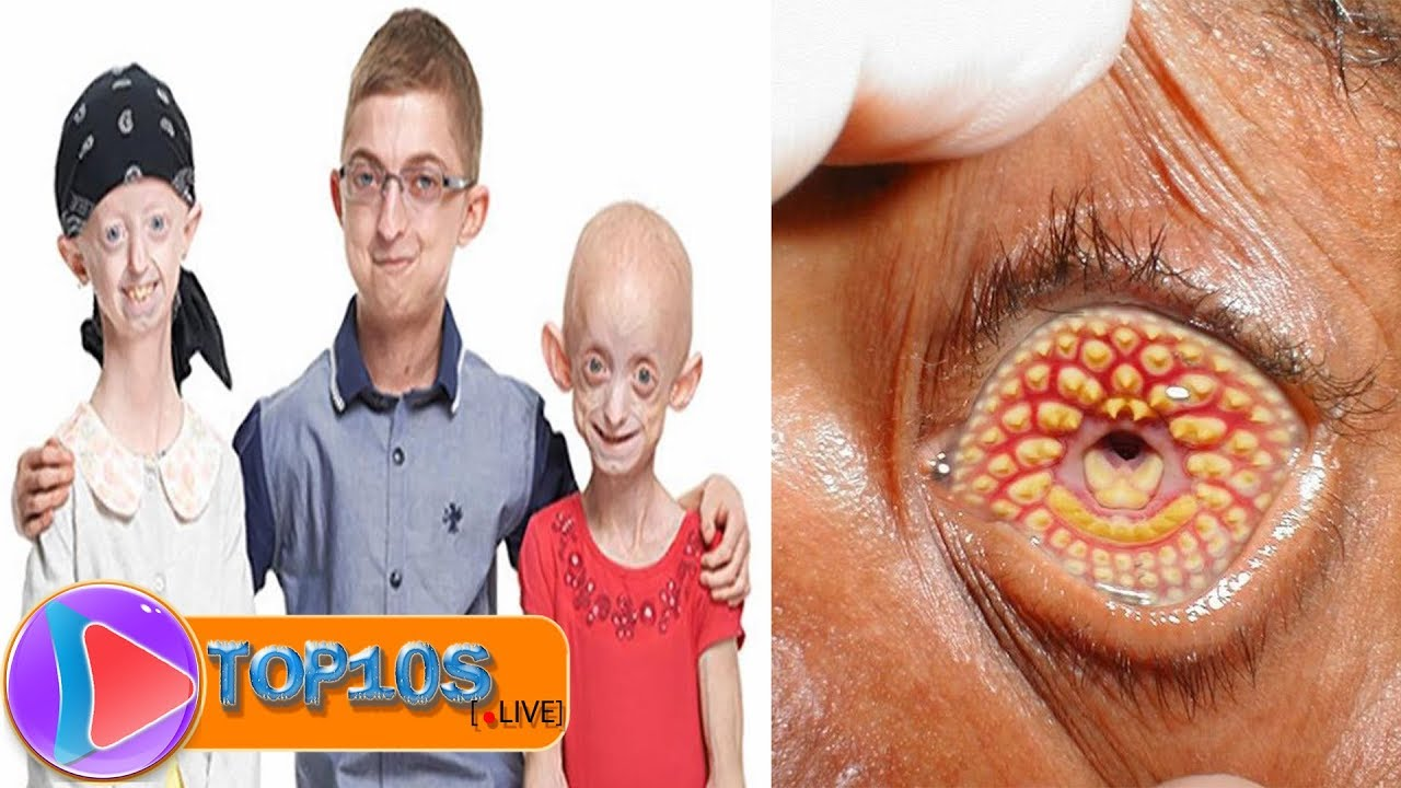 10 Most Weirdest And Rarest Diseases Known To Mankind ...