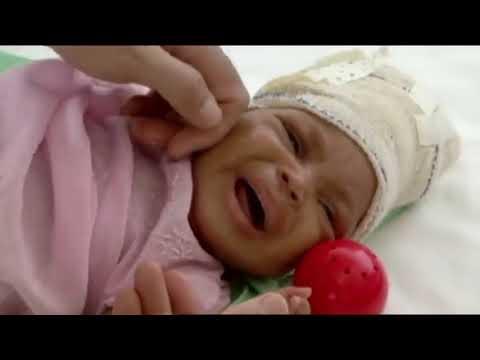 The Race To Save Landina From Haiti Earthquake (Medical Documentary)