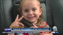 Port St. Lucie toddler may need plastic surgery after dog attack