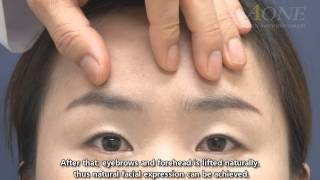 Endoscopic forehead-eyebrow lift of young people [Eng. dubbed with subtitles]
