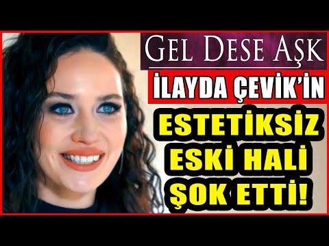 Gel Dese Aşk'ın Bahar'ı İlayda Çevik'in Estetiksiz Hali Görenleri Şok Etti!