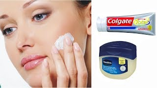 How to Using Vaseline And Toothpaste Secret Tip