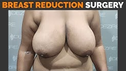 My Breast Reduction Journey | Woman Boobs Size Reduction By Dr. Prashant Yadav