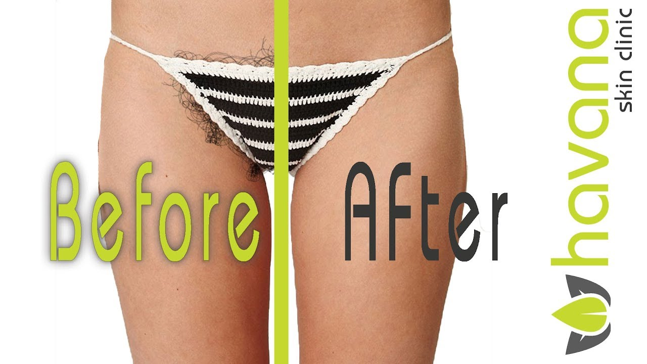 Laser Hair Removal Bikini Before After Youtube