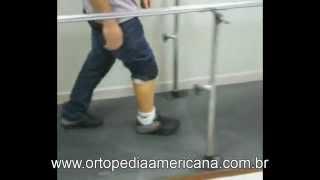 Prótese para amputação de Syme- Ortopedia Americana