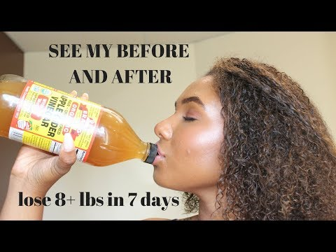 How To Lose 8 Pounds In One Week | Drinking Apple Cider Vinegar | Lose Weight Fast