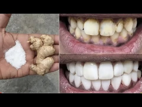 avoir des dents blanches en deux minutes how to get white teeth in two minutes youtube. Black Bedroom Furniture Sets. Home Design Ideas