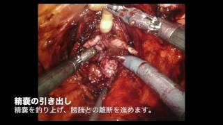 ロボット支援根治的前立腺摘除術
