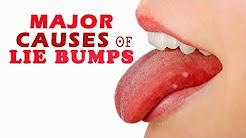 hqdefault - White Pimple Tongue Tip