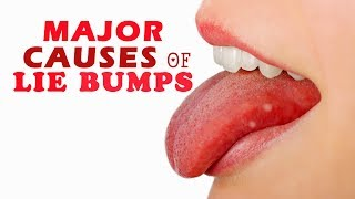 Major Causes of Lie Bumps