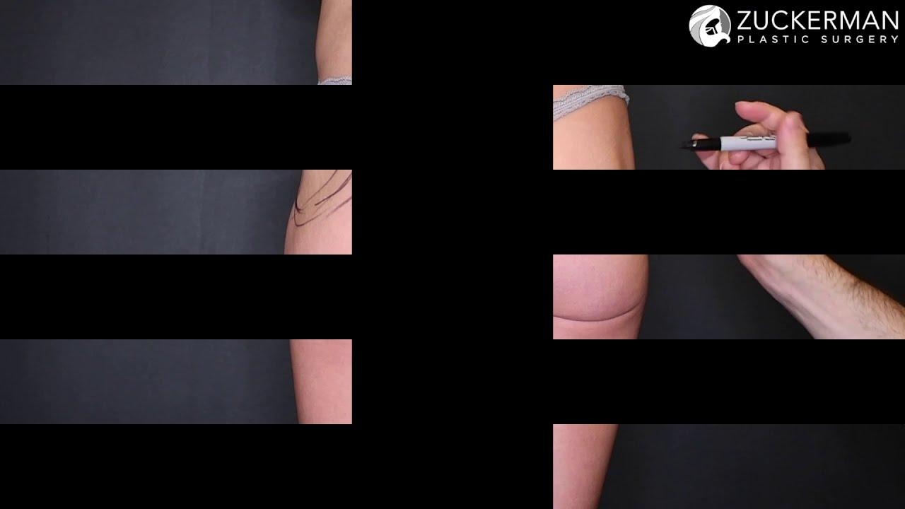 Non-Surgical Buttock Augmentation via Dermal Filler