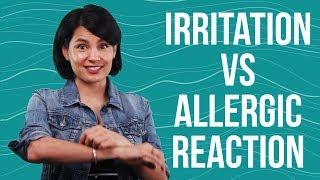 Beauty Edu: Irritation vs Allergic Reaction