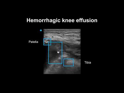 How To Detect Joint Effusions With Ultrasound