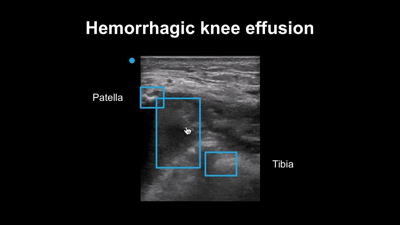 Artroza articulațiilor șoldului și genunchiului 2 grade