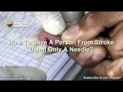 Treating stroke with pin pricks