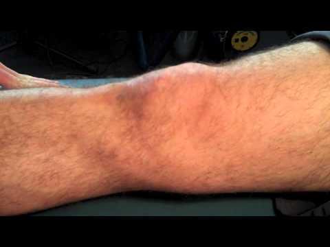 Trace Effusion Assessed Via the Stroke Test | Chris Johnson PT