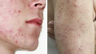 Como elimina el acné, espinillas y cualquier tipo de granos.