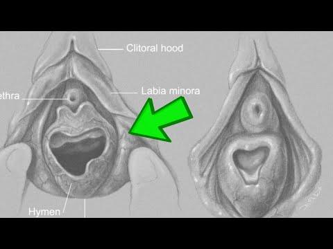 İlk cinsi əlaqədə - Qızlıq pərdəsi necə pozulur?