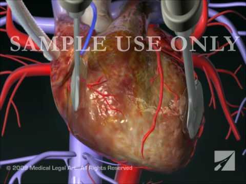 Coronary Artery Bypass Graft (CABG) Procedure