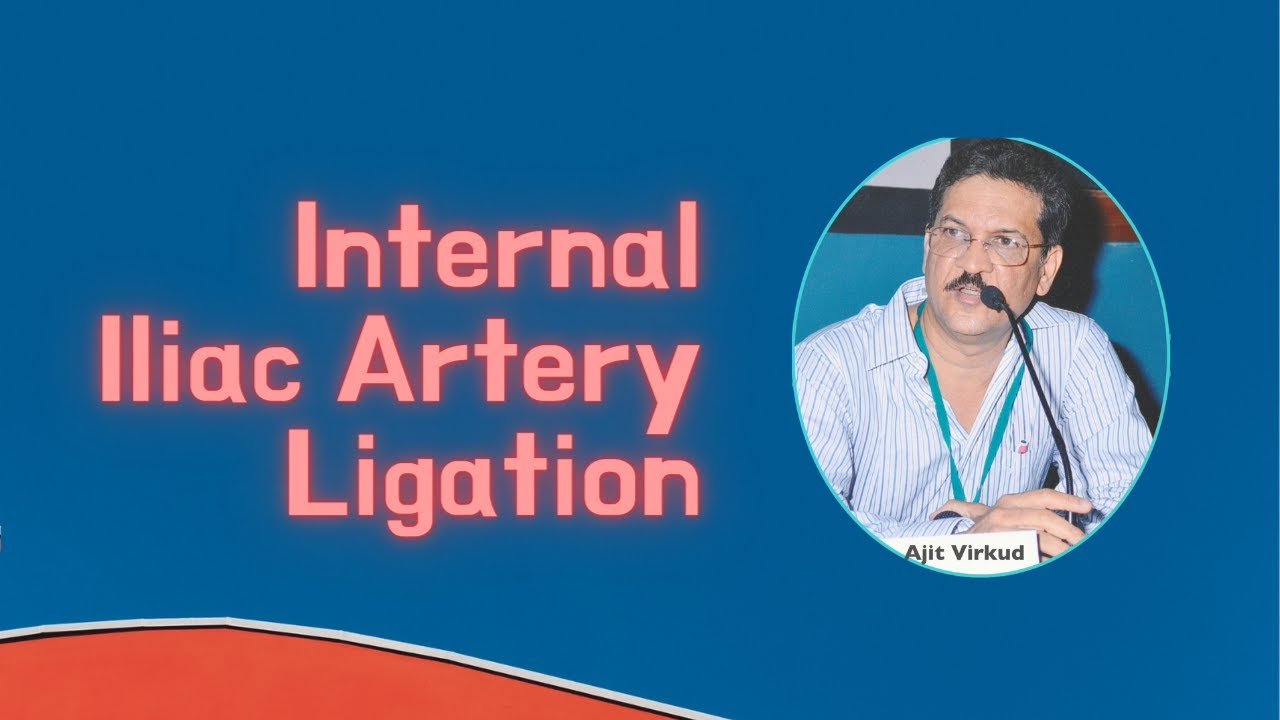 Internal Iliac Artery Ligation - YouTube