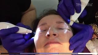 Plexr Treatment Review