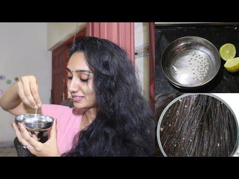 100% താരൻ അകറ്റാനുള്ള ഒറ്റമൂലികൾ | Dandruff Treatment at Home in Malayalam| Dandruff Malayalam
