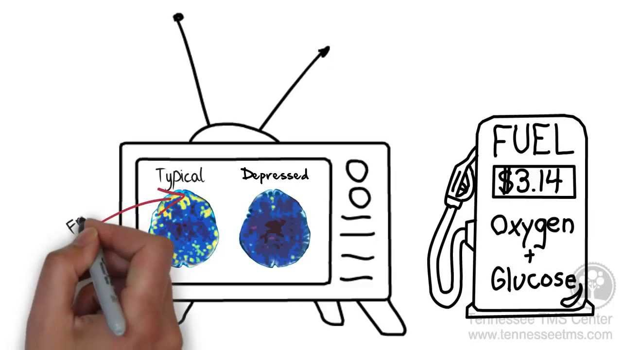 Recommended Watch: Transcranial Magnetic Stimulation (TMS): What is it and how does it work?