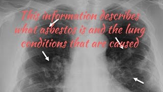 Asbestos Related Lung Disease
