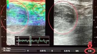 УЗИ Лимфатические узлы (меланома и рак грудной железы). Эластография. Lymph nodes. Sonoelastography.(, 2017-02-13T12:08:27.000Z)