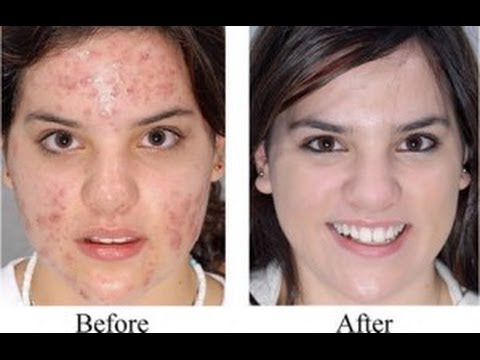 How to Get rid of Acne - Acne No More