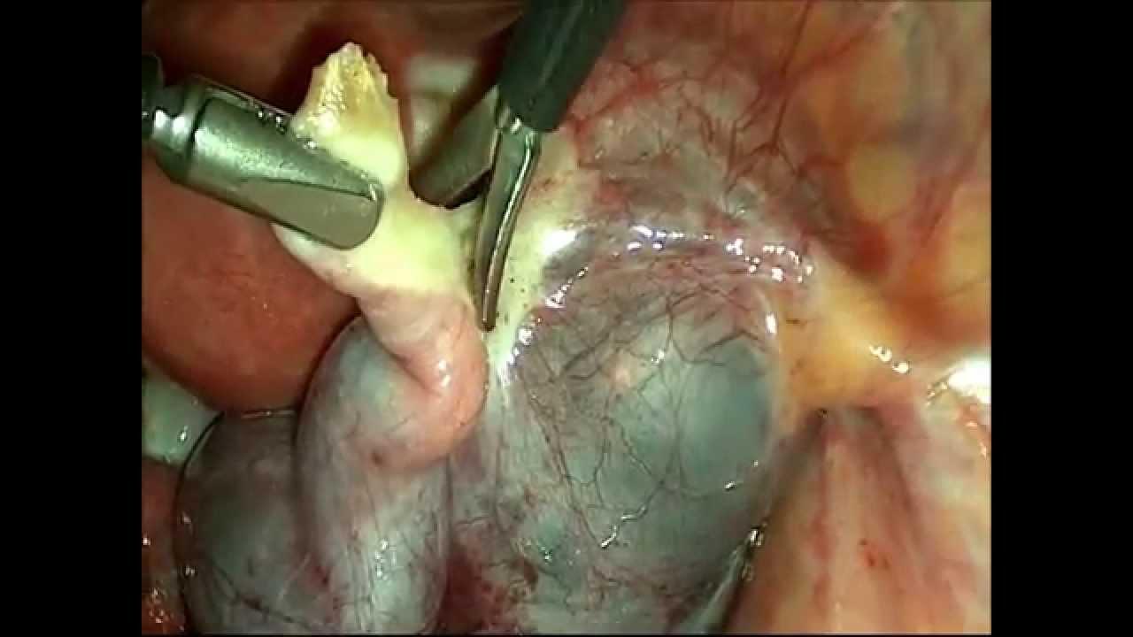 Большой гидросальпинкс. Удаление маточной трубы.