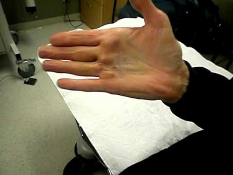 Xiaflex and Dupuytren's Contracture