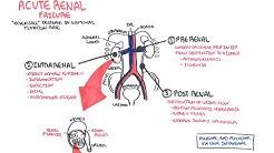 hqdefault - Pathophysiology Of Acute Kidney Failure