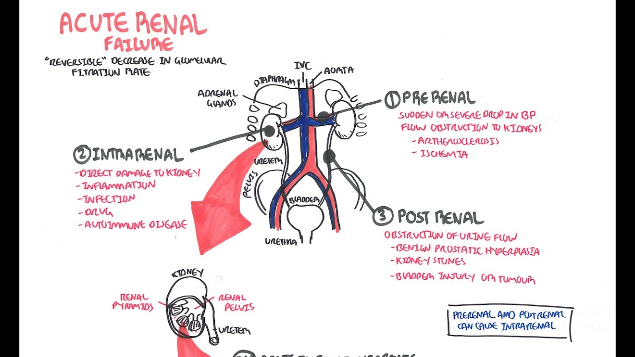 small resolution of acute renal failure