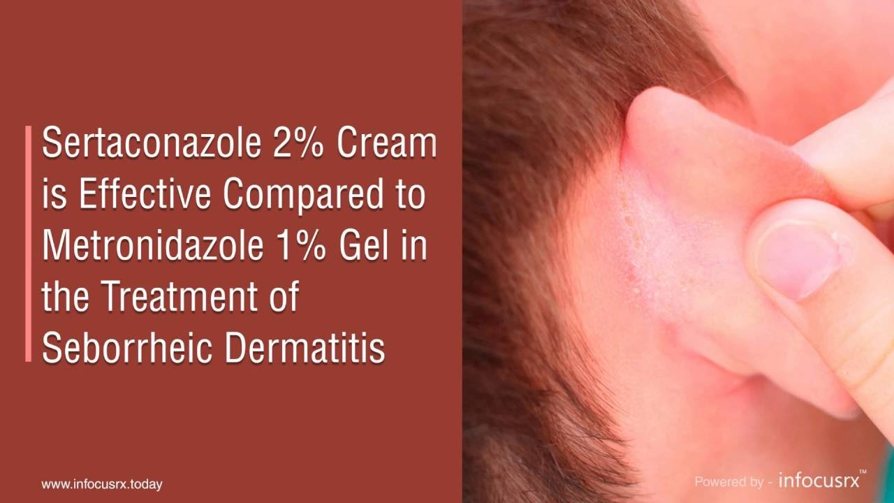 Sertaconazole 2% Cream Is Effective Compared To Metronidazole 1% Gel In  Seborrheic Dermatitis