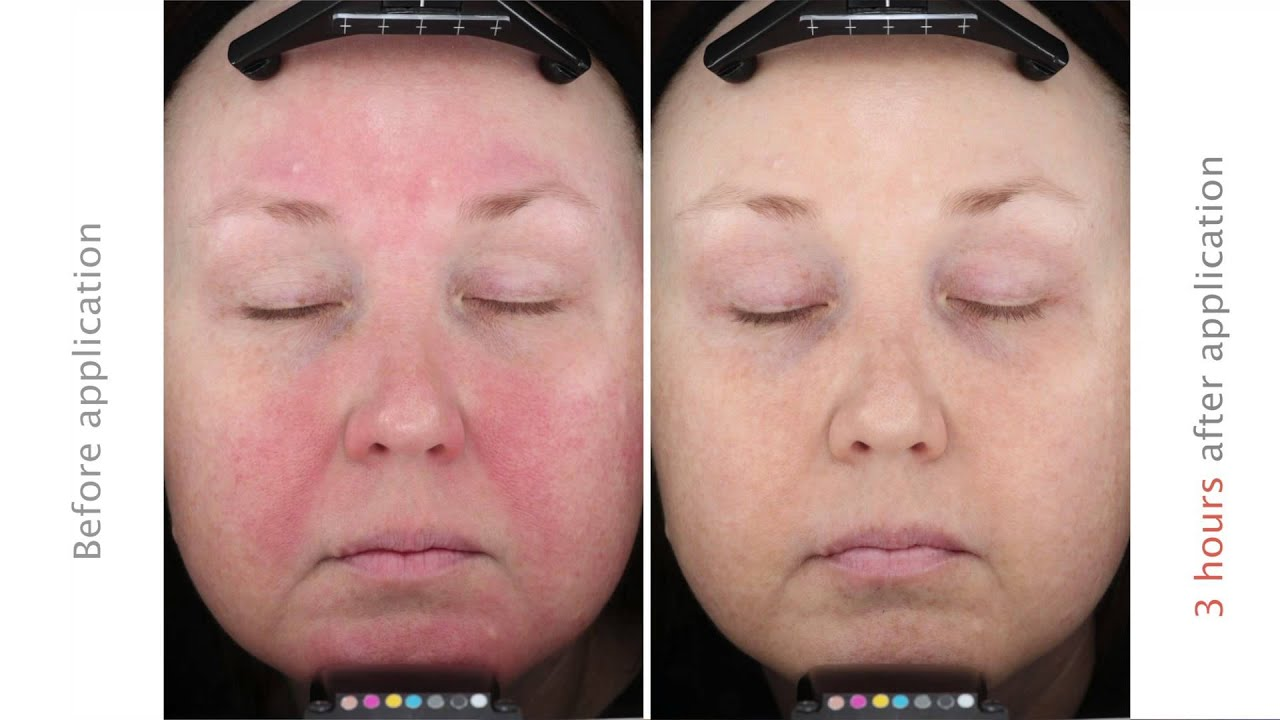 Rosacea: treatment, reviews. Facial Rosacea: Laser Treatment 6