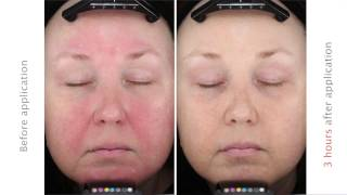 Onreltea: New Rosacea Treatment