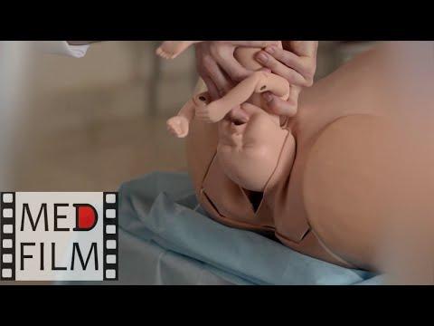 Роды при ножном предлежании плода © Fetus According